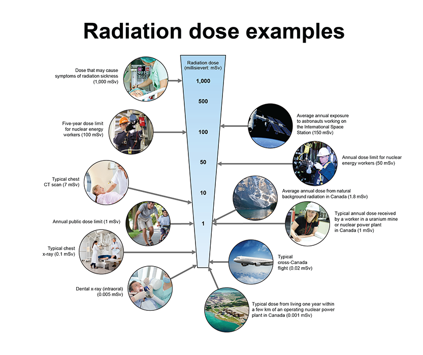 radiation doses examples